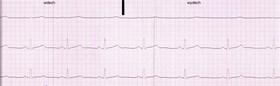 elektrokardiyografi