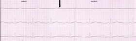 elektrokardiyogram