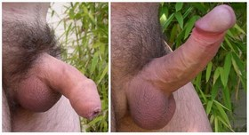ereksiyon