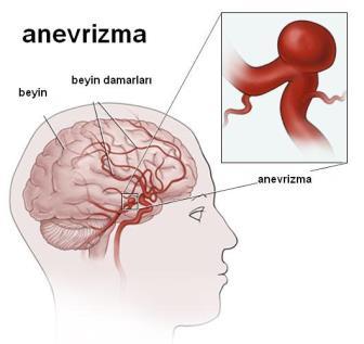 anevrizma