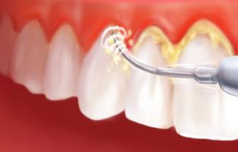 diş taşı